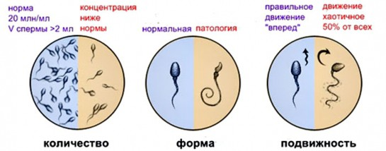 Варикоцеле сперма