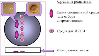 intratsitoplazmicheskoe-inektsiya-spermatozoida-iksi