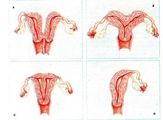 Патологии строения матки